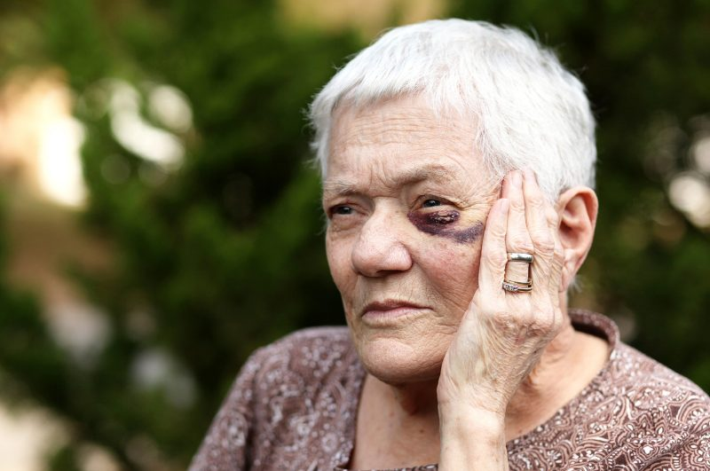 elder woman with black eye